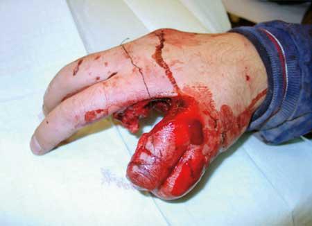 handverletzung.jpg